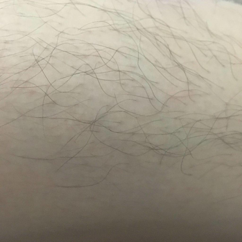 ラボ エディション 口コミ ホーム 脱毛